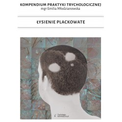 E-book Łysienie plackowate